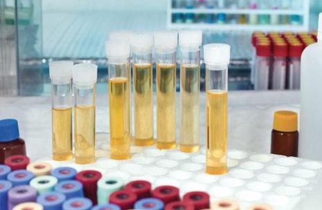 Целесообразность проведения анализа мочи на туберкулез методом ПЦР