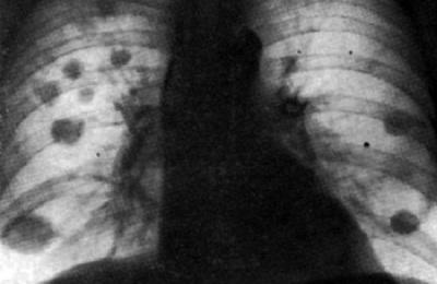 Что такое туберкулома легких?