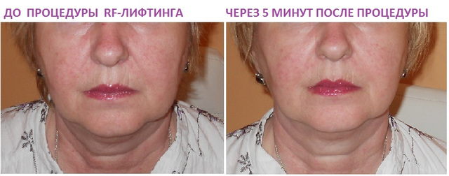 Процедура и фото эффекта от RF-лифтинга
