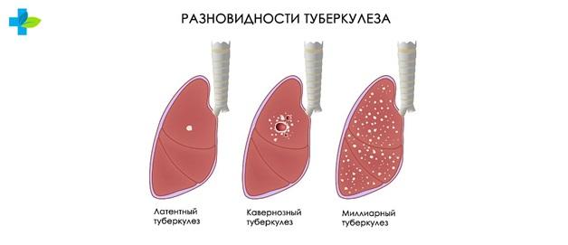 Классификация туберкулеза во всех его проявлениях