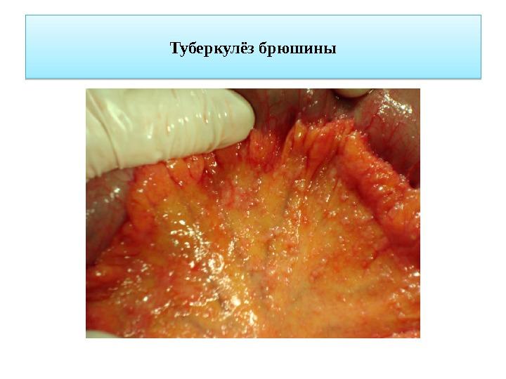 Причины и лечение туберкулеза брюшины