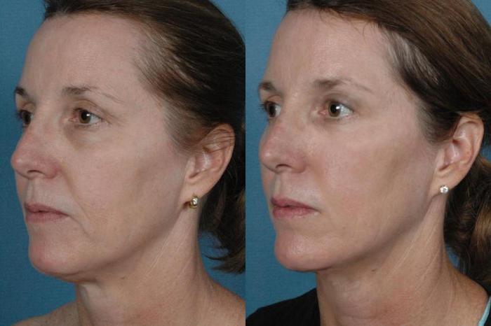 фото до и после диодного омоложения