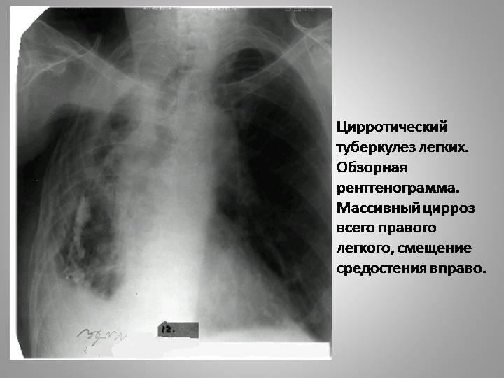 Что такое цирротический туберкулез легких?