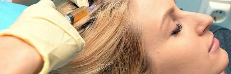 Процедура мезотерапии для волос препараты и как проводят