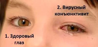 лечить конъюнктивит у ребенка